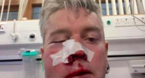 From San Basilio to Ireland, again violence on referees: broken jaw to Sweeney after assault