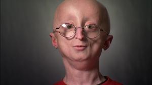 Progeria, la malattia che ti fa invecchiare in fretta e morire a 17 anni