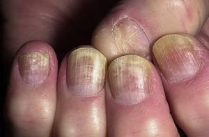 Cina, il mistero dei bimbi che perdono le unghie: 17, tutti nello stesso asilo