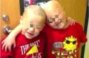 Zac perde i capelli per la chemioterapia: il suo migliore amico si rasa a zero