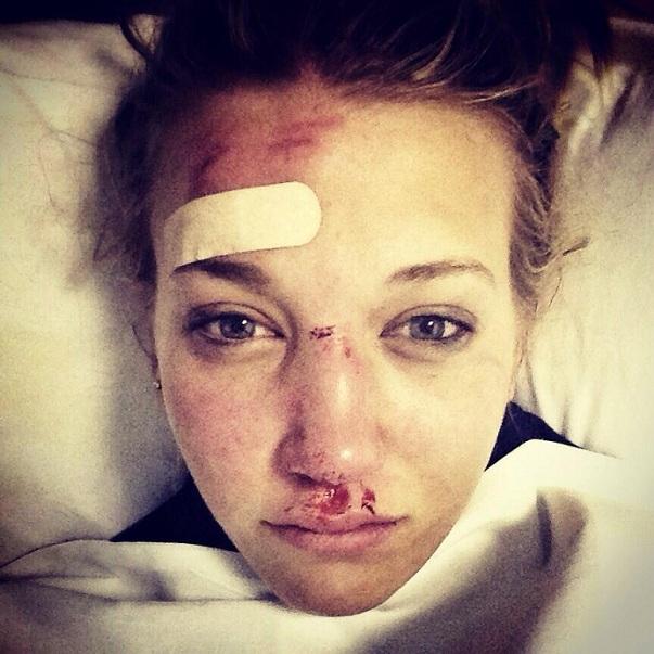 Rowan Cheshire ferite volto