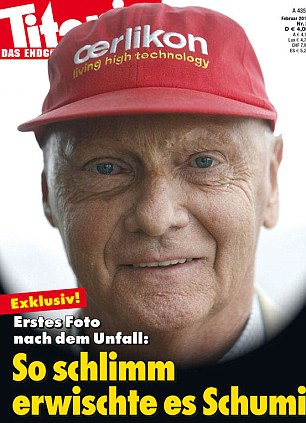 Schumacher sfigurato come Niki Lauda: copertina choc (foto)