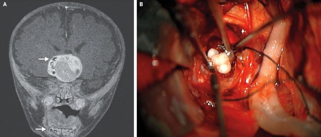 Bimbo di 4 anni con i denti nel cervello per un tumore (foto)