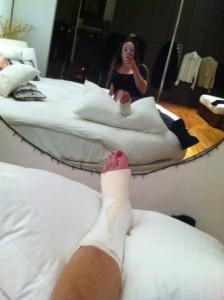 La caviglia di Angela ingessata in un selfie (autoscatto)