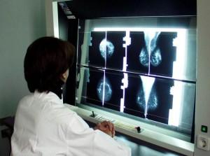 """""""Mammografia non salva la vita"""": diagnosi tumore errata per 1 donna su 5"""
