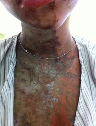 Iran, ha sfigurato una donna con l'acido
