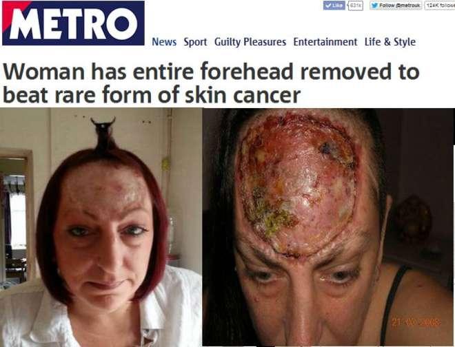 """Cancro ossa cranio, le rimuovono fronte: """"Un piccolo urto può uccidermi"""" (foto)"""