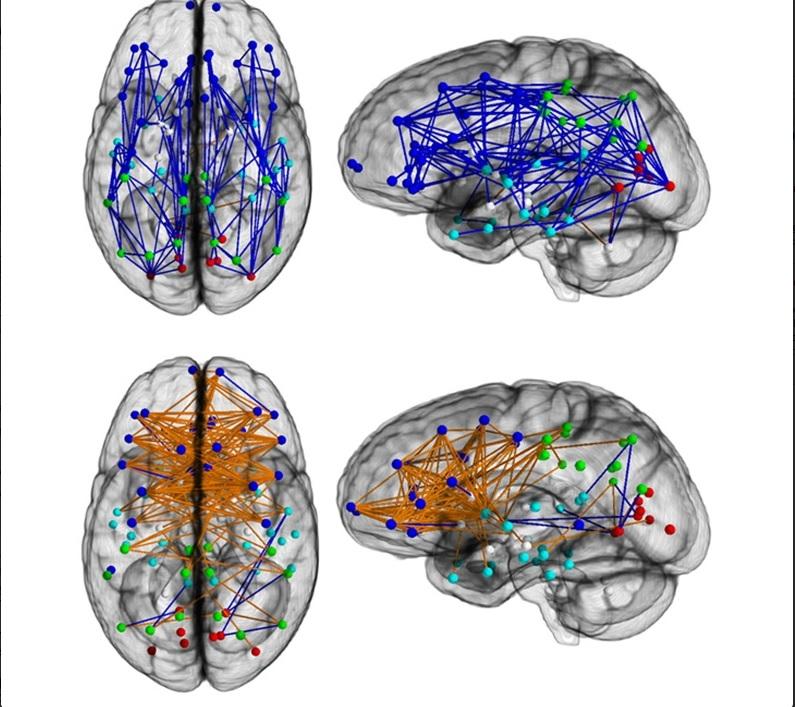 Cervello donne e cervello uomini, guarda la foto: funzionano diversamente Credit: Ragini Verma, PhD, Proceedings of the National Academy of Sciences