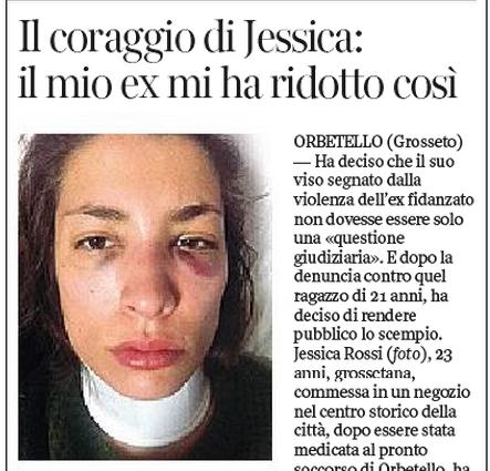 """Jessica Rossi denuncia ex fidanzato: """"Mi ha picchiata così"""". E pubblica la foto"""
