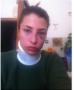Jessica Rossi col volto tumefatto