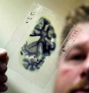 Alzheimer, test sangue lo predice 3 anni prima: è esatto nel 90% dei casi
