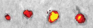 Nanopalloncini contro il cancro: esplodono e liberano il farmaco nel tumore