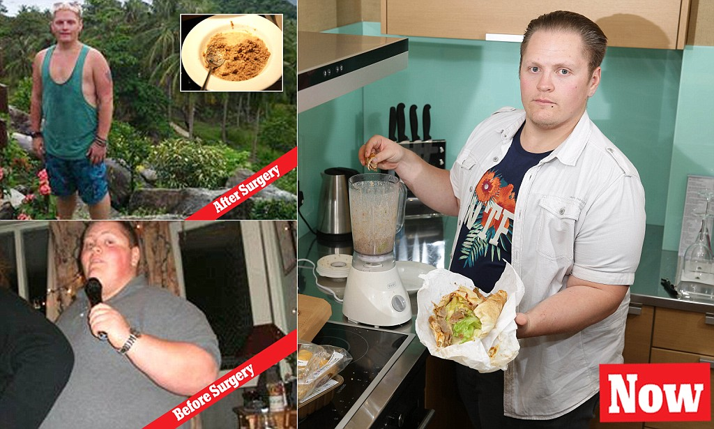 Junk Food Addict  Christopher Mcdonnell iquidises kebabs and burgers to get past his gastric band