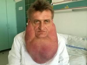 Stefan Zoleik, l'idraulico slovacco col tumore da 6 kg sul volto