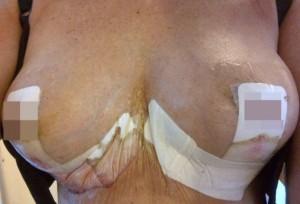 """""""Le tette rifatte mi sono implose"""": il silicone gira per il suo corpo"""