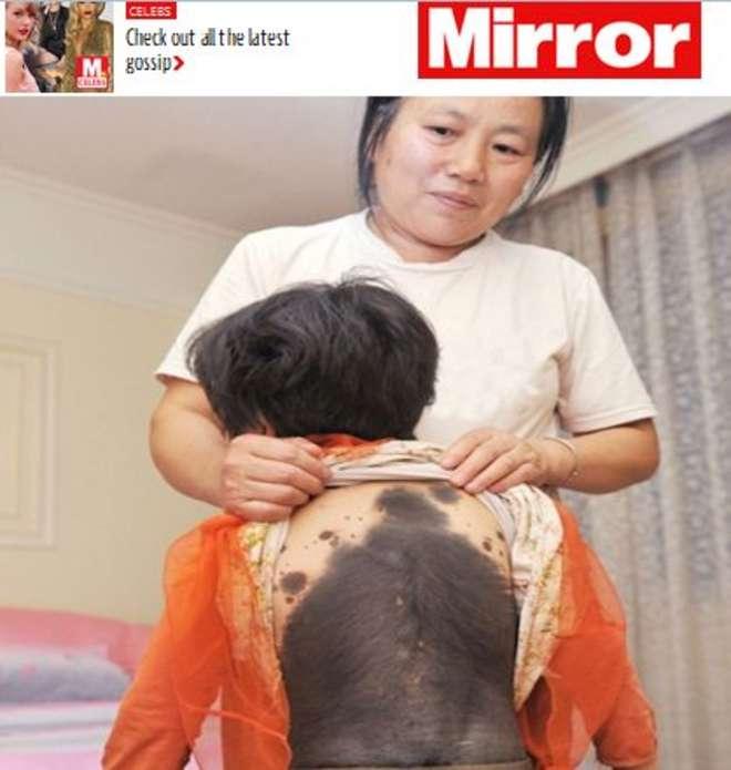 Cina, bimba di 5 anni è ricoperta di peli: la mamma l'abbandona
