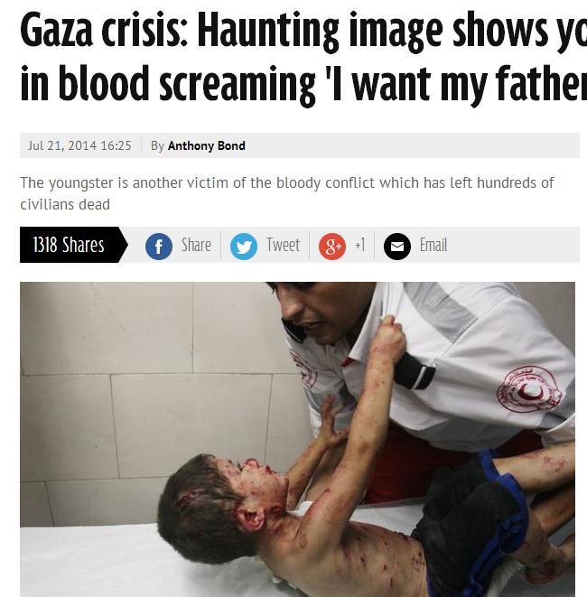 """Gaza, bimbo ferito in ospedale supplica il medico: """"Voglio mio padre"""" (foto)"""