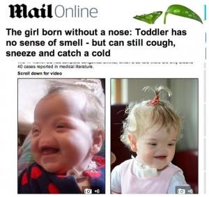 Tessa Evans, la bimba di due anni nata senza naso