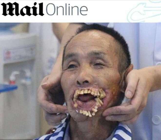 Sfregiato in volto da un lupo quando era bambino. A 65 anni torna a sorridere