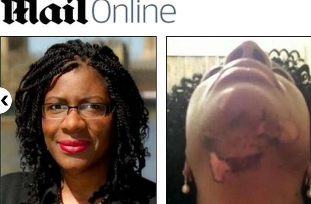 Vanda Thomas: estetista usa laser troppo forte, cicatrici a vita sul viso (foto)