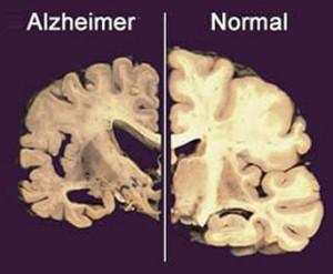 Ansiolitici aiutano Alzheimer a nascere: rischio più alto del 50%