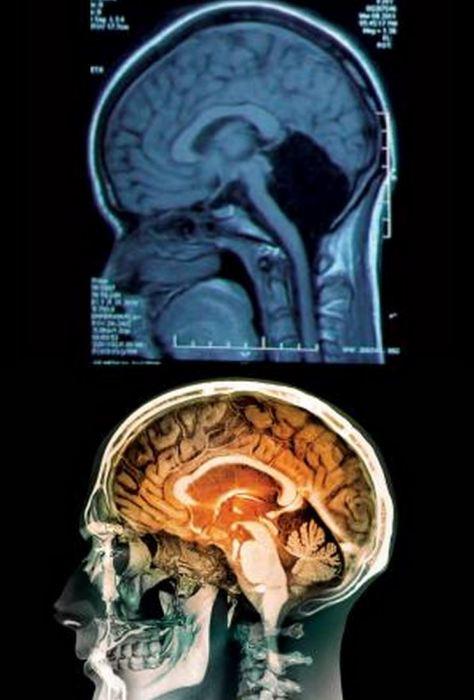 Nausea e vertigini: va dal medico, scopre di essere senza cervelletto da 24 anni
