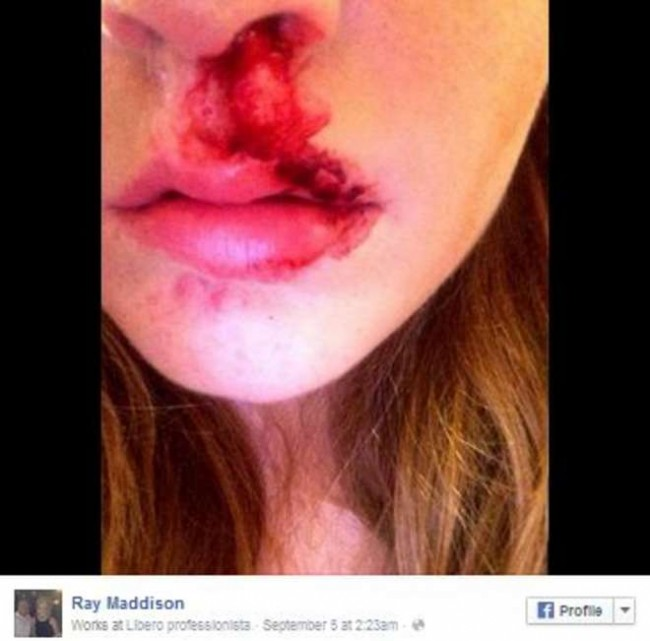 Amy Maddison picchiata in strada: genitori postano foto su Fb con labbro e naso sanguinanti