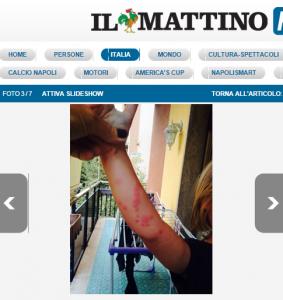 """Allarme cimici al Vomero, una mamma: """"Mia figlia di 2 anni ha bolle e febbre"""""""