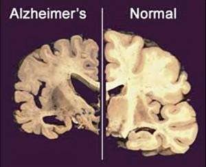 "Alzheimer, una molecola impedisce al cervello di ""ripulirsi"""
