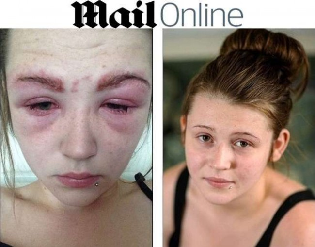 Kate Thompson si tinge le sopracciglia e rischia di diventare cieca