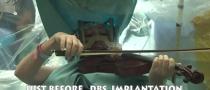 Israele, suona il violino mentre la operano al cervello VIDEO
