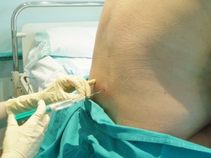 Francia: muore di parto a 28 anni. L'anestesista era ubriaca