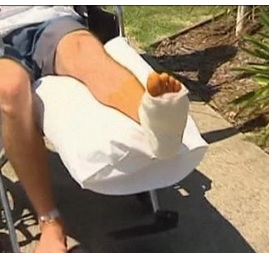 Australia, surfista morso alla gamba per aver pestato testa di uno squalo