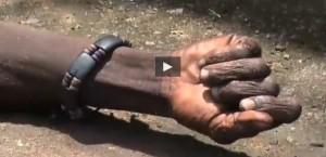 """Ebola, """"cadavere"""" si risveglia mentre lo portano al crematorio VIDEO"""