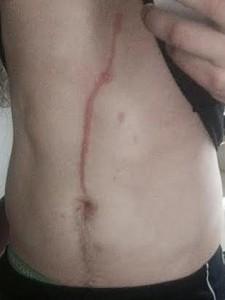 Dylan Thomas, ragno penetra sotto pelle e gli scava nella pancia VIDEO