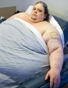 Keith Martin, uomo più grasso del mondo, è morto. Pesava 450 chili