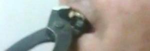 Costalta. Strappano dente con tenaglia a disabile: video finisce su Whatsapp