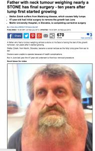 Stefan Zoleik, tumore al viso di 6 chili. Dopo 10 anni finalmente lo operano
