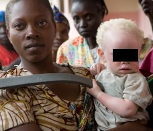 Tanzania. Bimbo albino trucidato per stregoneria: braccia e gambe amputate