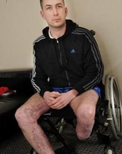 Fa una festa, amici danno fuoco alla casa: finisce in coma e con gamba amputata