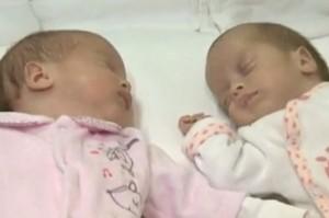 "Gemelle nascono in due anni diversi. ""Sacche di placenta separate"""