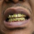 Mendicante si finge muto per nascondere denti d'oro: smascherato con barzelletta