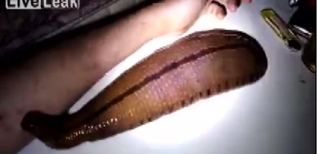 Medicina per una trombosi di vena delle estremità più basse