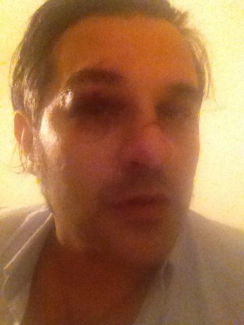Mauro Marin, ex Grande Fratello, aggredito da uno sconosciuto FOTO
