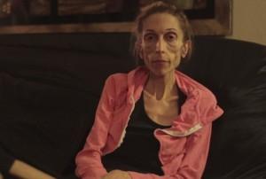 VIDEO YouTube - Anoressia, Rachael Farrokh pesa 20 chili e rischia la vita