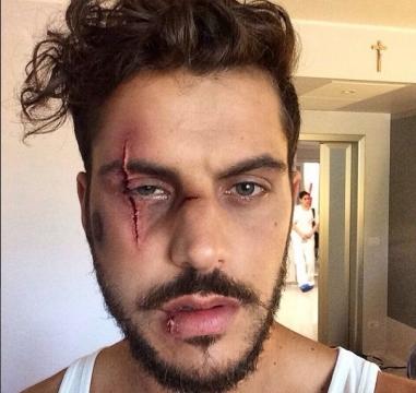 Andrea Montovoli, foto con taglio sul volto: trucco o ferita reale?