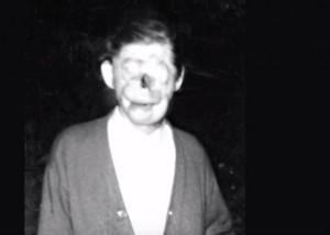 """VIDEO YouTube - """"Charlie senza volto"""": l'uomo sfigurato che divenne leggenda"""