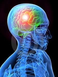Emicrania, intervento mini invasivo per liberare i nervi