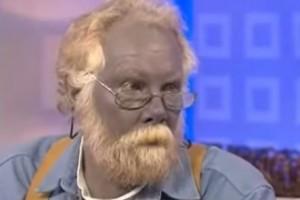 """""""Paul Grande Puffo"""": storia dell'uomo con la pelle blu."""