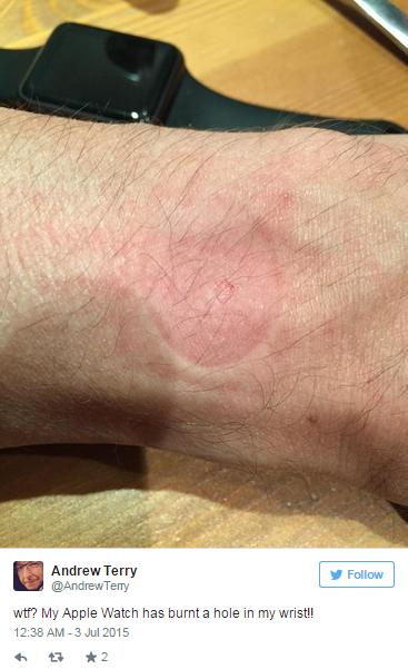 Apple Watch, casi di allergie e reazioni: su Twitter le foto delle ferite